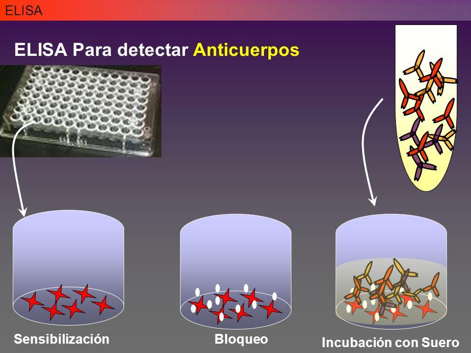 ELISA Para detectar Anticuerpos