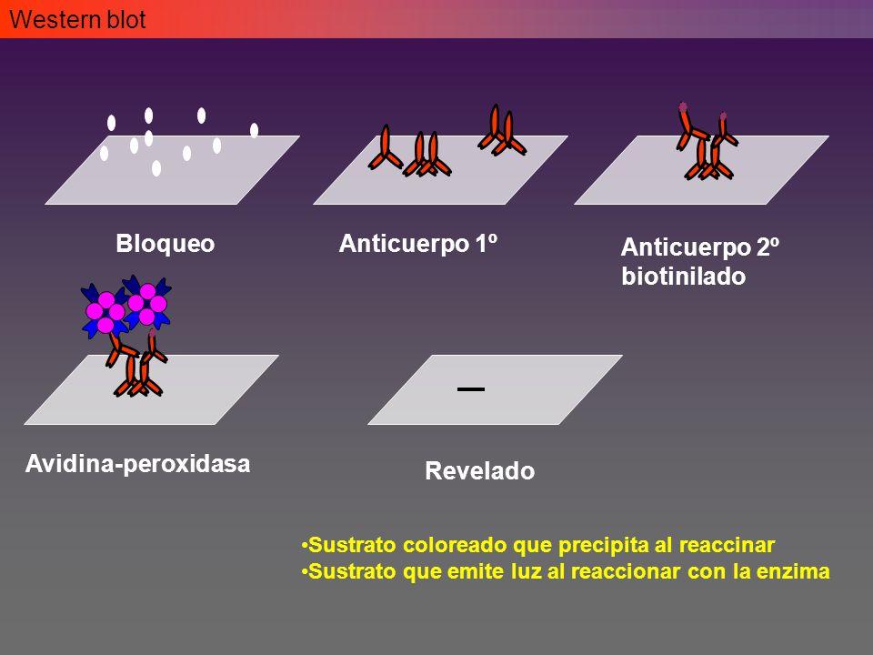 Western blot Bloqueo Anticuerpo 1º Anticuerpo 2º biotinilado