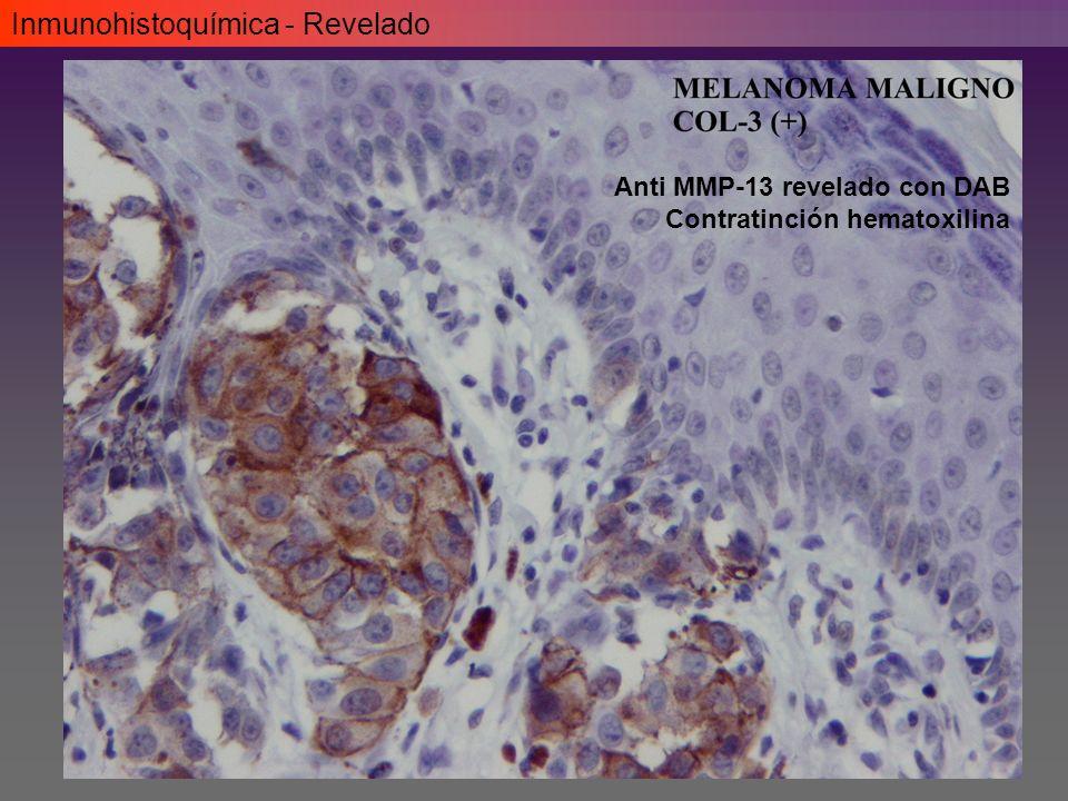 Inmunohistoquímica - Revelado