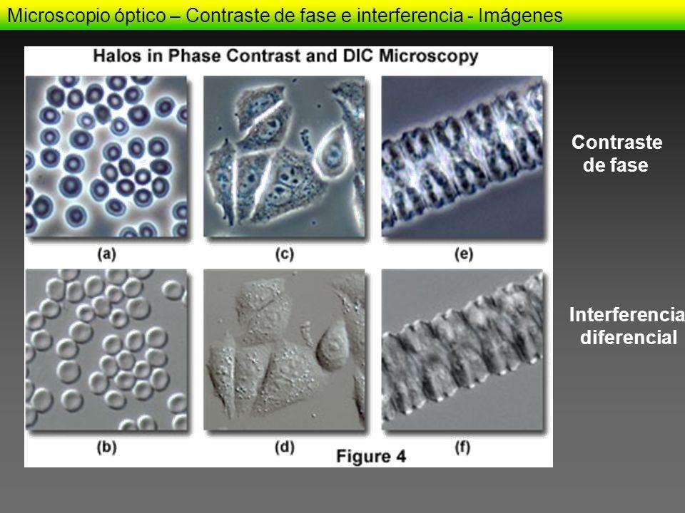 Microscopio óptico – Contraste de fase e interferencia - Imágenes