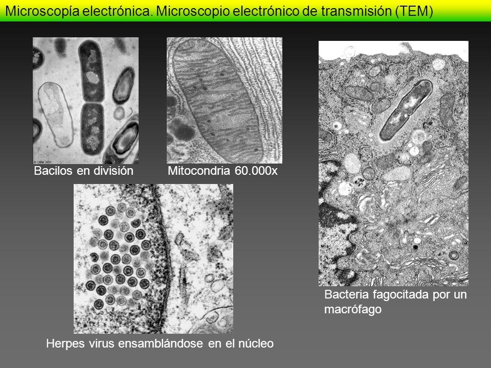 Microscopía electrónica. Microscopio electrónico de transmisión (TEM)