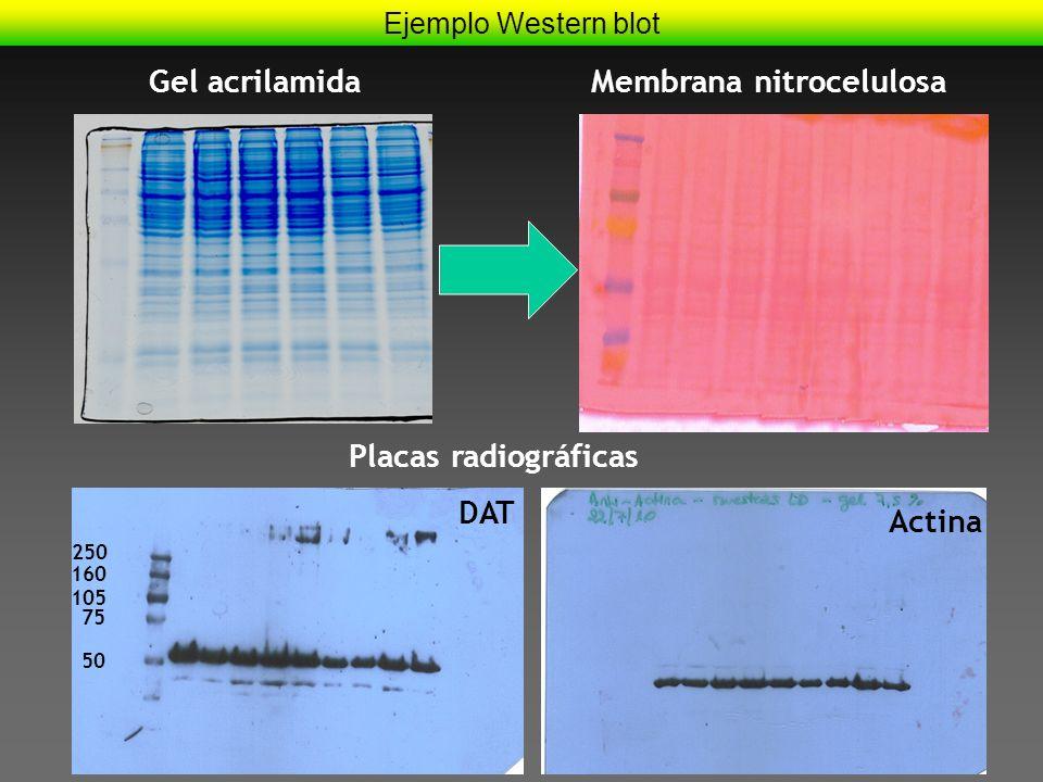 Membrana nitrocelulosa