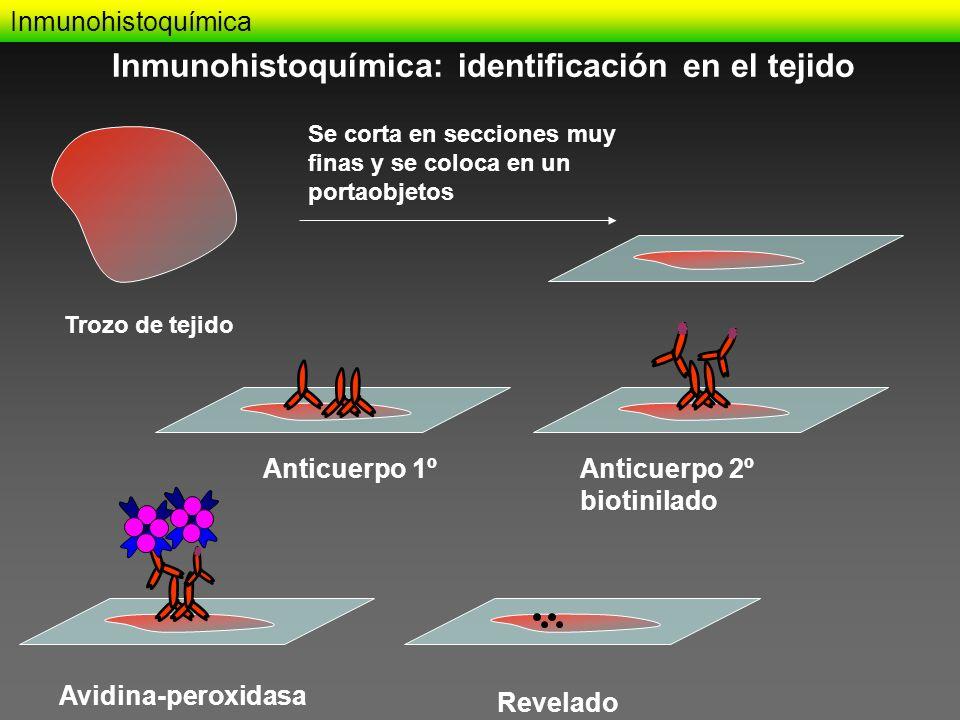 Inmunohistoquímica: identificación en el tejido
