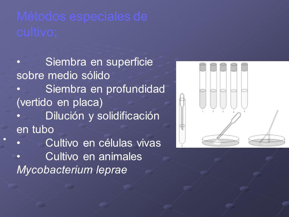 Métodos especiales de cultivo;