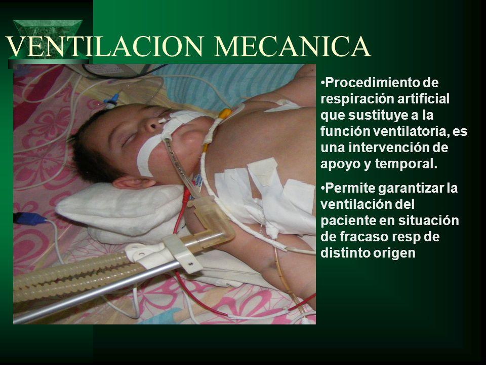 VENTILACION MECANICA Procedimiento de respiración artificial que sustituye a la función ventilatoria, es una intervención de apoyo y temporal.