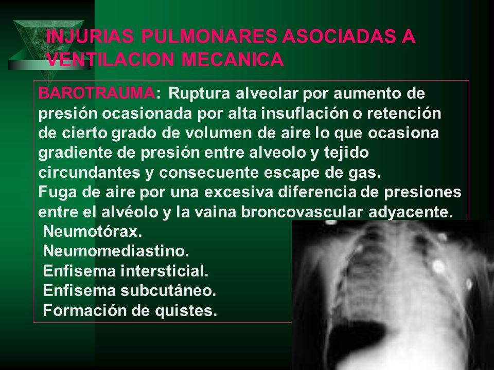 INJURIAS PULMONARES ASOCIADAS A VENTILACION MECANICA