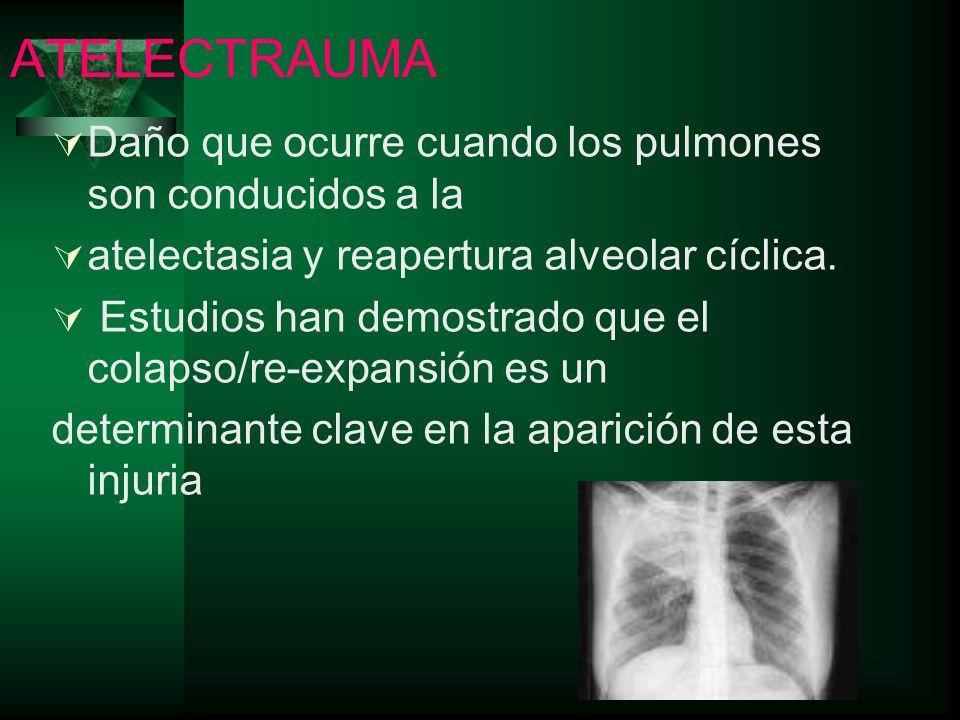 ATELECTRAUMA Daño que ocurre cuando los pulmones son conducidos a la