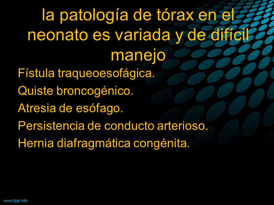 la patología de tórax en el neonato es variada y de difícil manejo