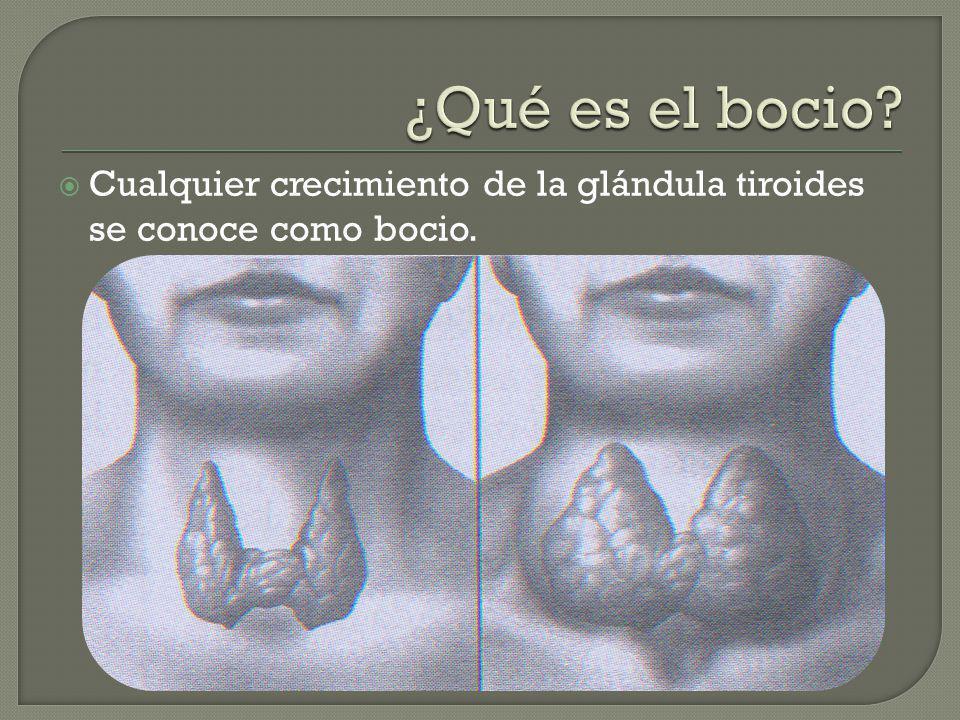 ¿Qué es el bocio Cualquier crecimiento de la glándula tiroides se conoce como bocio.