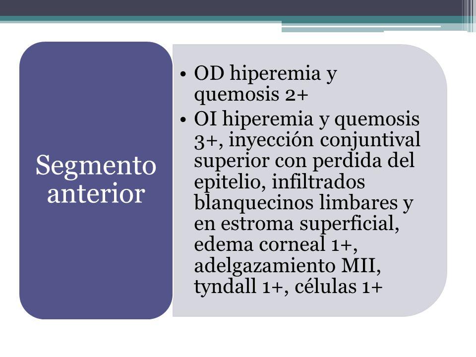 Segmento anterior OD hiperemia y quemosis 2+