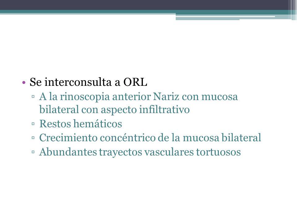 Se interconsulta a ORL A la rinoscopia anterior Nariz con mucosa bilateral con aspecto infiltrativo.