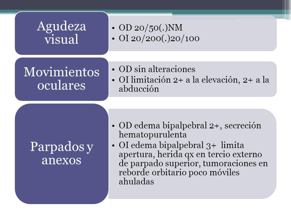Agudeza visual OD 20/50(.)NM. OI 20/200(.)20/100. Movimientos oculares. OD sin alteraciones. OI limitación 2+ a la elevación, 2+ a la abducción.