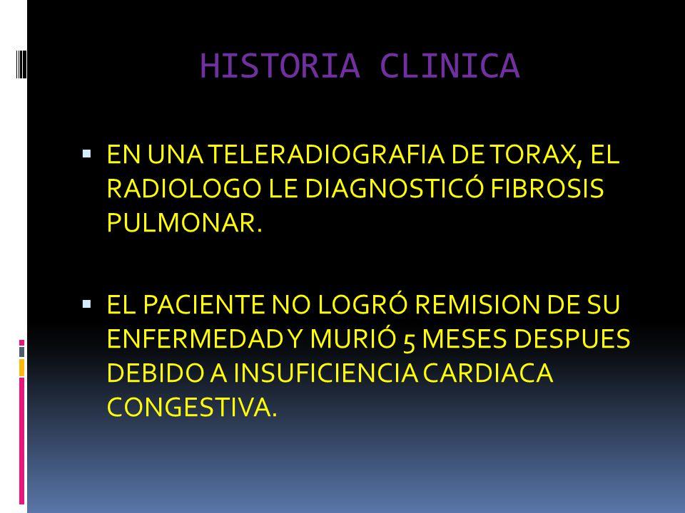HISTORIA CLINICA EN UNA TELERADIOGRAFIA DE TORAX, EL RADIOLOGO LE DIAGNOSTICÓ FIBROSIS PULMONAR.