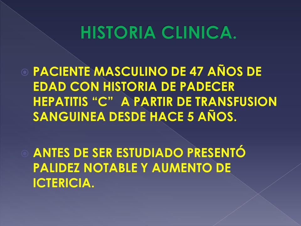 HISTORIA CLINICA. PACIENTE MASCULINO DE 47 AÑOS DE EDAD CON HISTORIA DE PADECER HEPATITIS C A PARTIR DE TRANSFUSION SANGUINEA DESDE HACE 5 AÑOS.