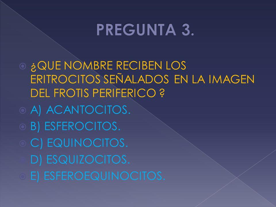 PREGUNTA 3. ¿QUE NOMBRE RECIBEN LOS ERITROCITOS SEÑALADOS EN LA IMAGEN DEL FROTIS PERIFERICO A) ACANTOCITOS.