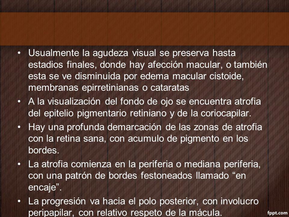 Usualmente la agudeza visual se preserva hasta estadios finales, donde hay afección macular, o también esta se ve disminuida por edema macular cistoide, membranas epirretinianas o cataratas