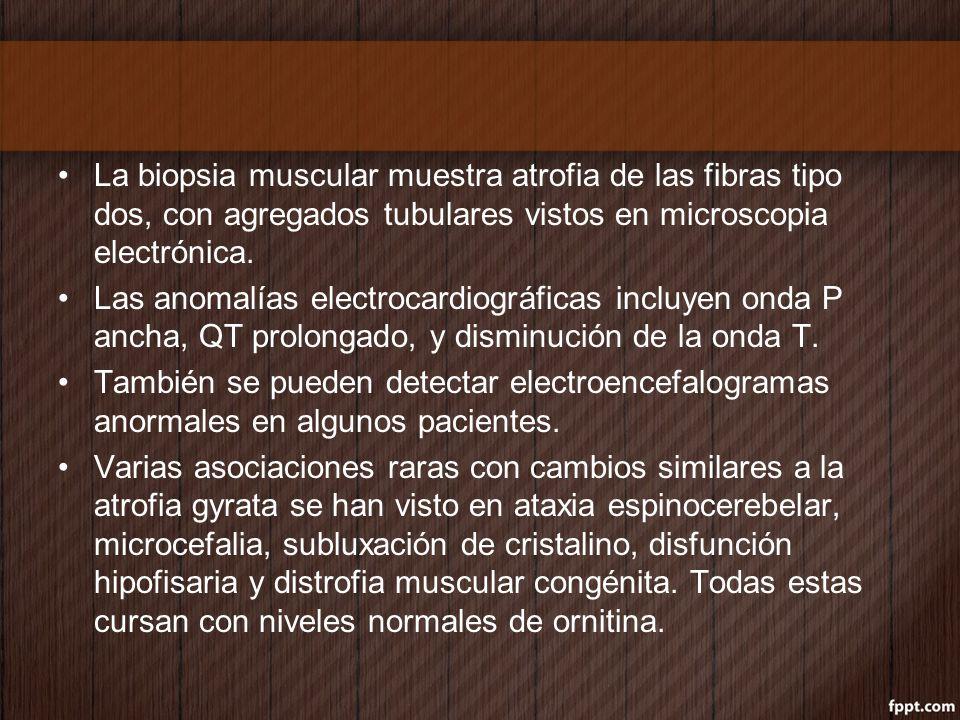 La biopsia muscular muestra atrofia de las fibras tipo dos, con agregados tubulares vistos en microscopia electrónica.