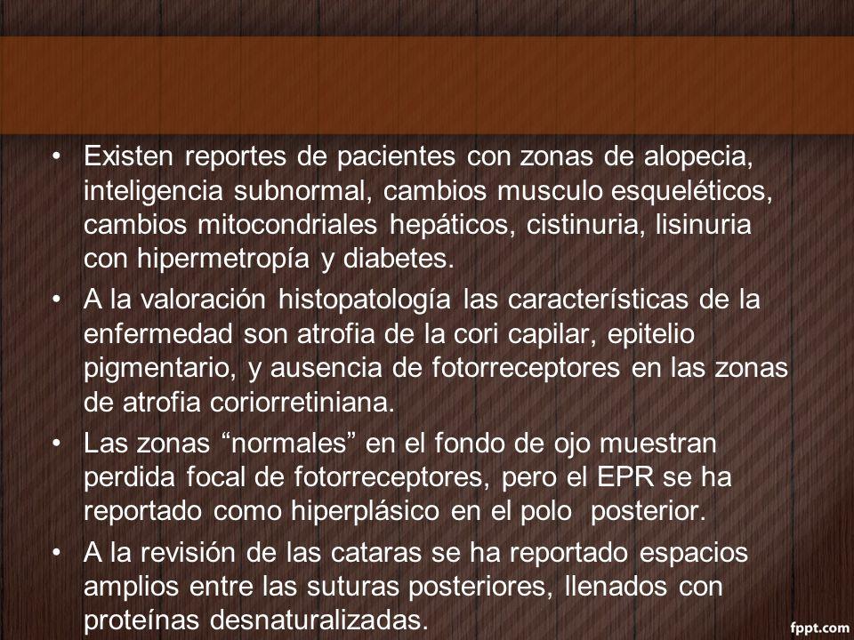 Existen reportes de pacientes con zonas de alopecia, inteligencia subnormal, cambios musculo esqueléticos, cambios mitocondriales hepáticos, cistinuria, lisinuria con hipermetropía y diabetes.