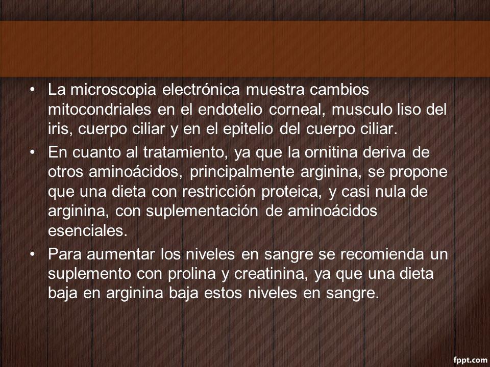 La microscopia electrónica muestra cambios mitocondriales en el endotelio corneal, musculo liso del iris, cuerpo ciliar y en el epitelio del cuerpo ciliar.