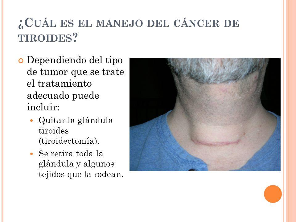 ¿Cuál es el manejo del cáncer de tiroides