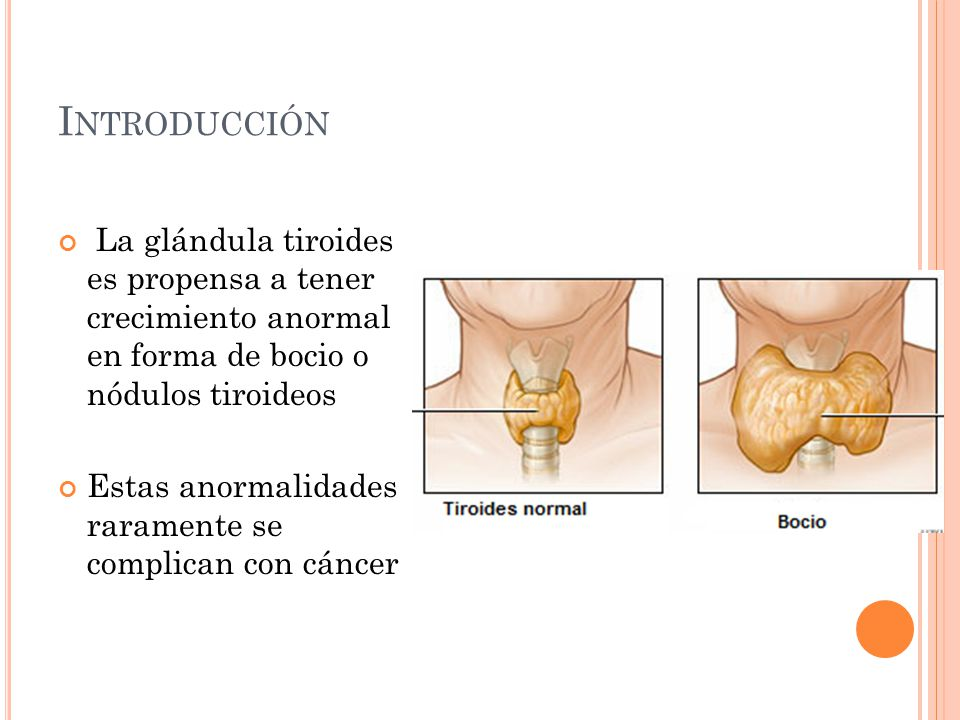 Introducción La glándula tiroides es propensa a tener crecimiento anormal en forma de bocio o nódulos tiroideos.