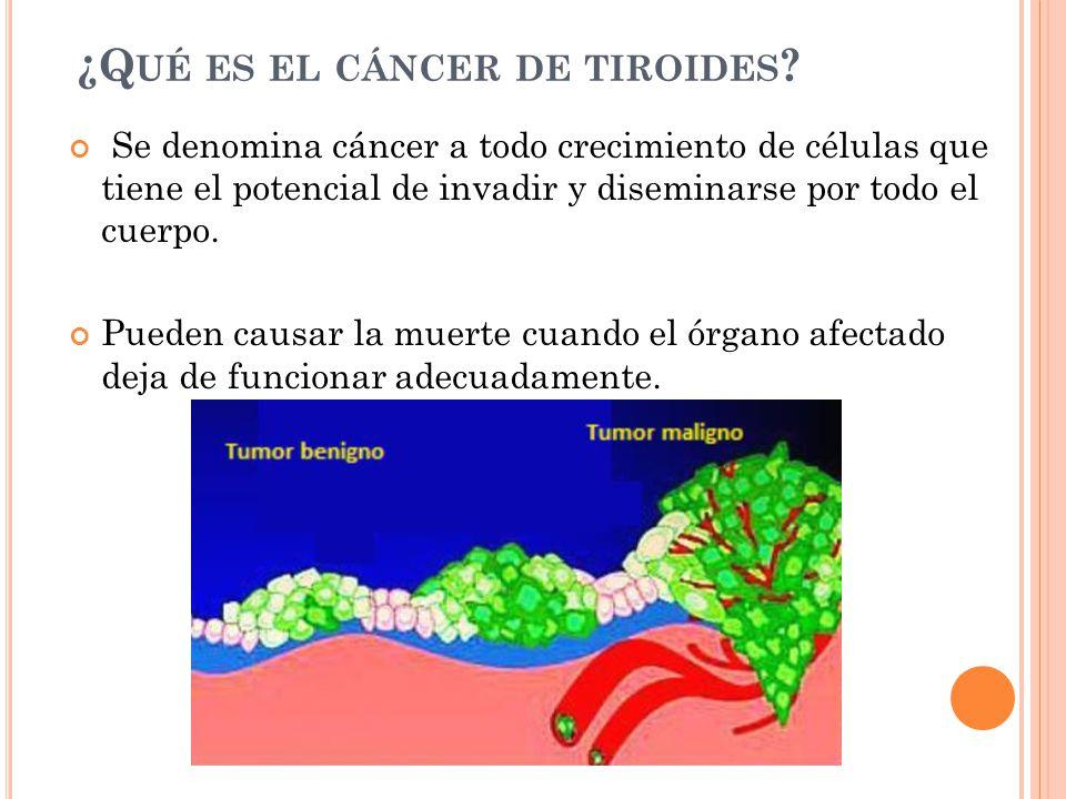 ¿Qué es el cáncer de tiroides