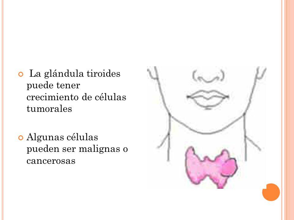 La glándula tiroides puede tener crecimiento de células tumorales