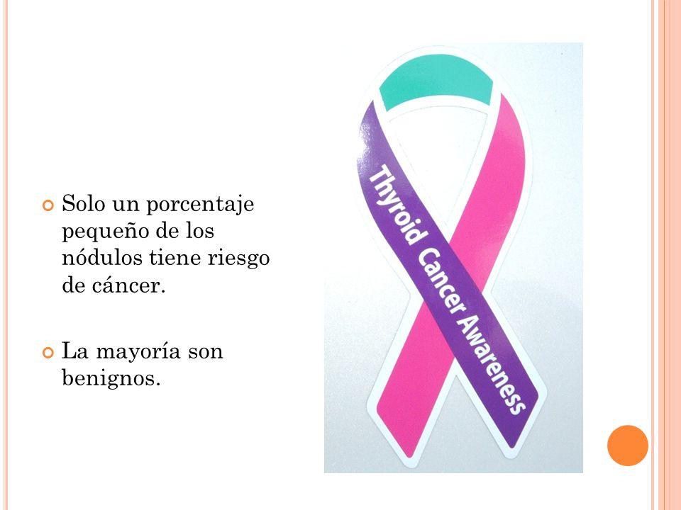 Solo un porcentaje pequeño de los nódulos tiene riesgo de cáncer.