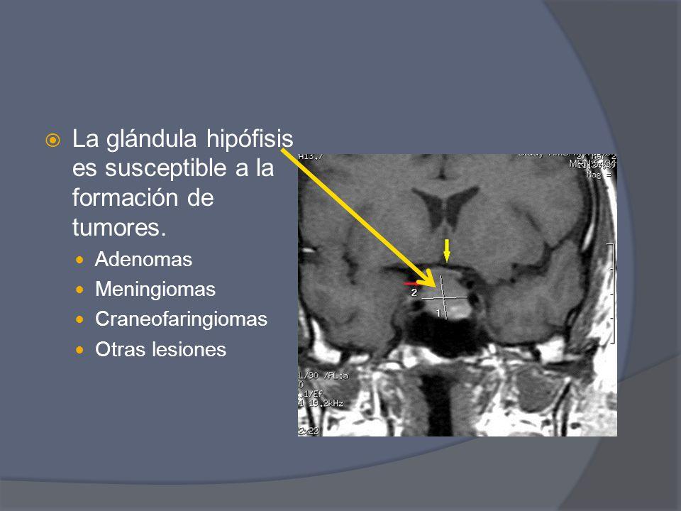 La glándula hipófisis es susceptible a la formación de tumores.
