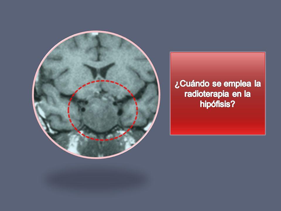 ¿Cuándo se emplea la radioterapia en la hipófisis