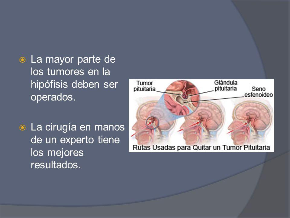 La mayor parte de los tumores en la hipófisis deben ser operados.