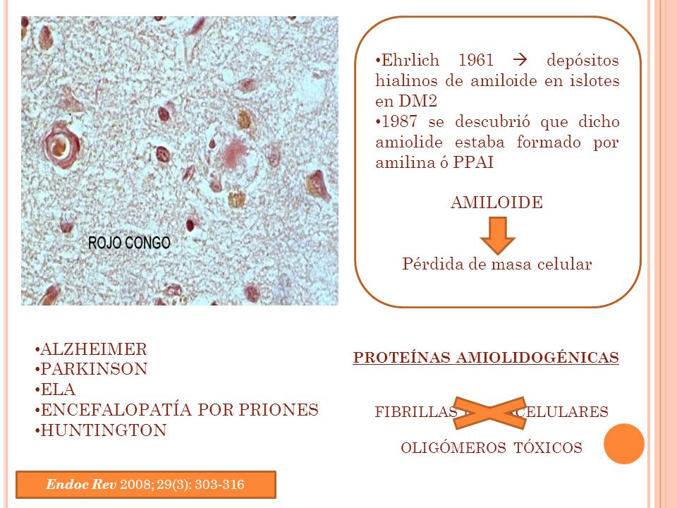 Ehrlich 1961  depósitos hialinos de amiloide en islotes en DM2