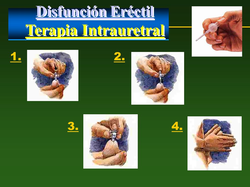 Disfunción Eréctil Terapia Intrauretral 1. 2. 3. 4.