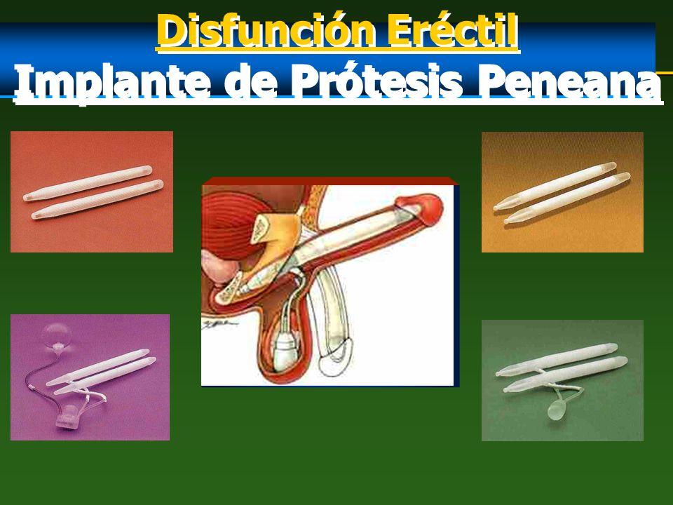 Implante de Prótesis Peneana