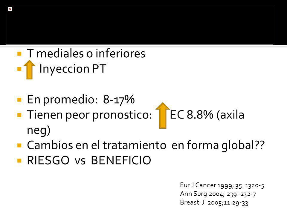 T mediales o inferiores Inyeccion PT En promedio: 8-17%