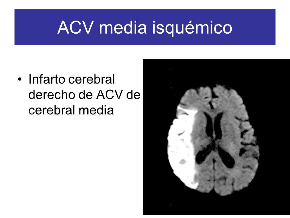 ACV media isquémico Infarto cerebral derecho de ACV de cerebral media