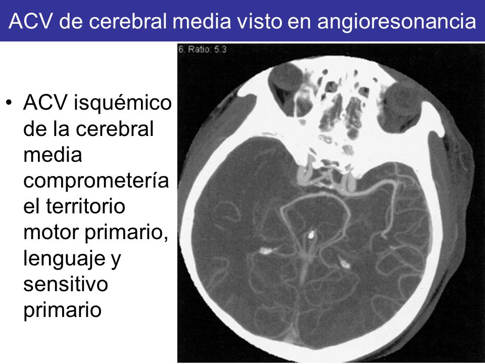 ACV de cerebral media visto en angioresonancia