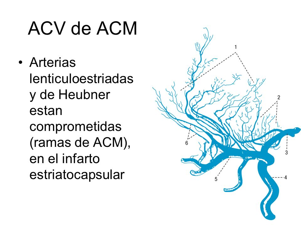 ACV de ACM Arterias lenticuloestriadas y de Heubner estan comprometidas (ramas de ACM), en el infarto estriatocapsular.