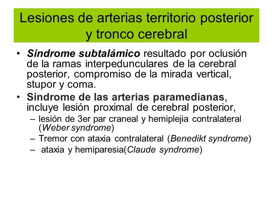 Lesiones de arterias territorio posterior y tronco cerebral
