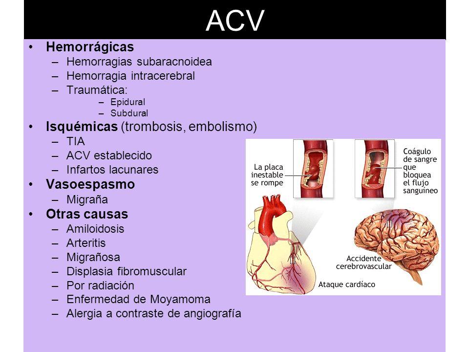 ACV Hemorrágicas Isquémicas (trombosis, embolismo) Vasoespasmo