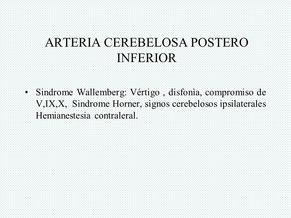 ARTERIA CEREBELOSA POSTERO INFERIOR