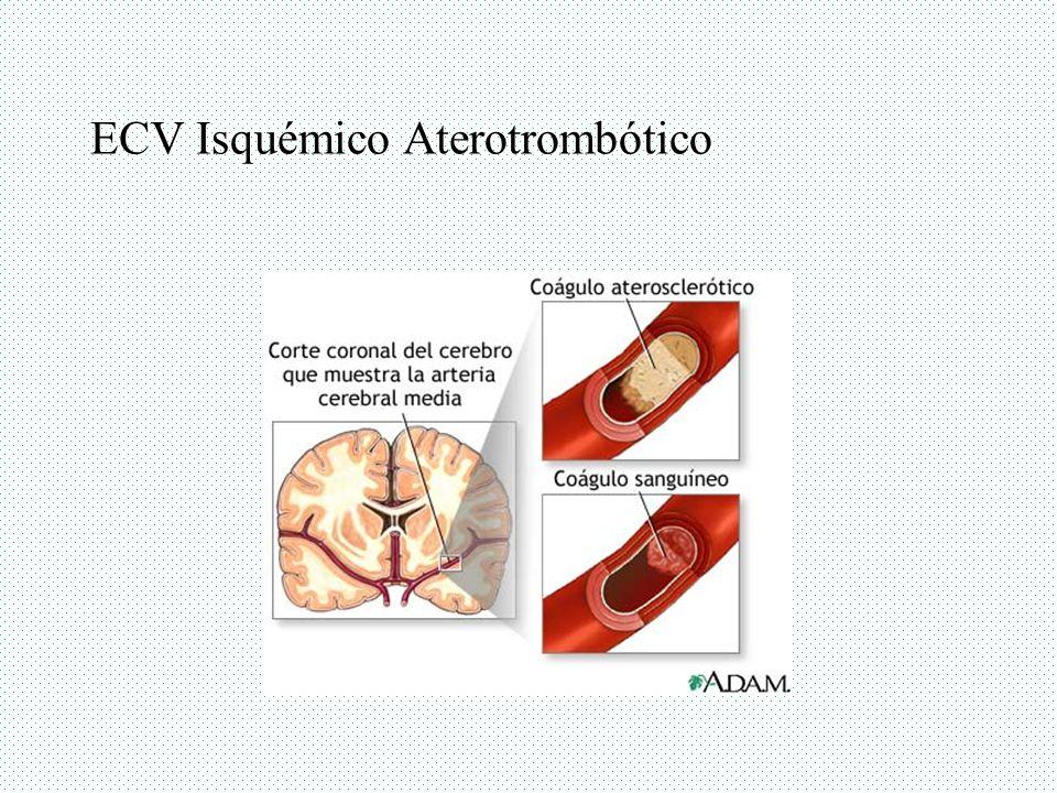 ECV Isquémico Aterotrombótico