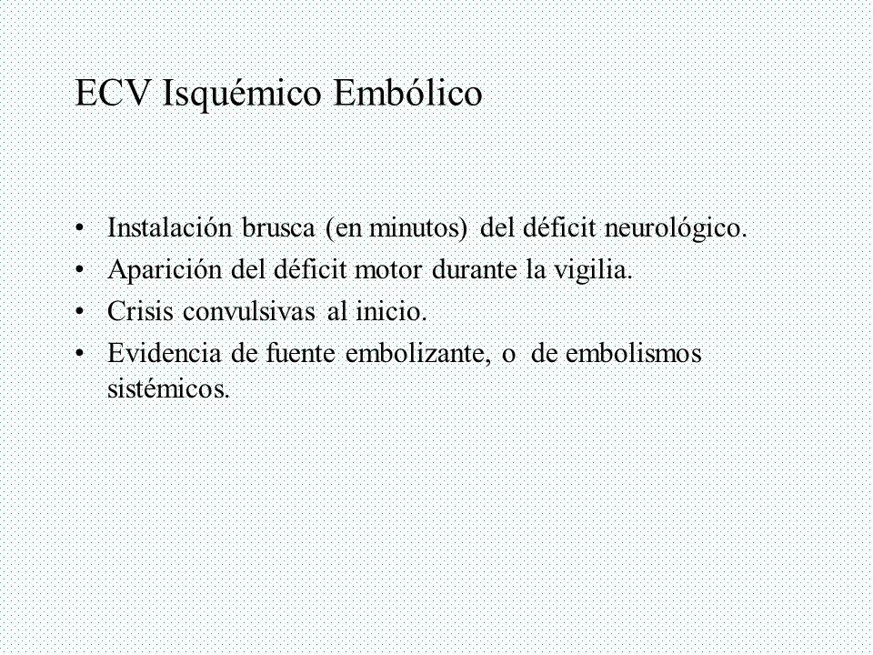 ECV Isquémico Embólico