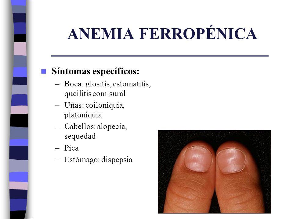 ANEMIA FERROPÉNICA Síntomas específicos: