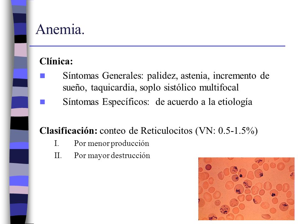 Anemia. Clínica: Síntomas Generales: palidez, astenia, incremento de sueño, taquicardia, soplo sistólico multifocal.