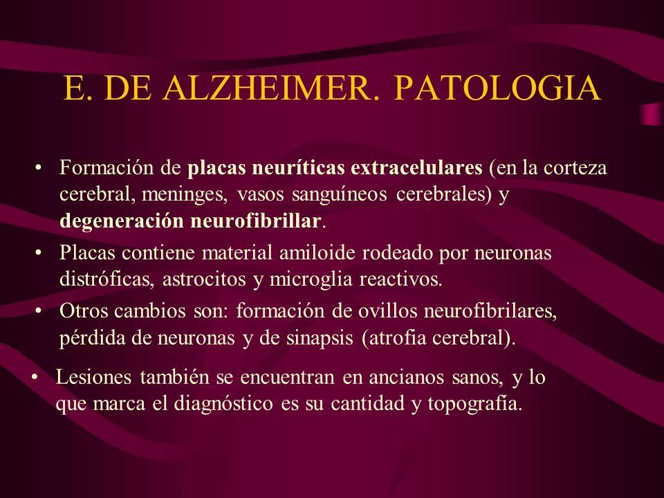 E. DE ALZHEIMER. PATOLOGIA