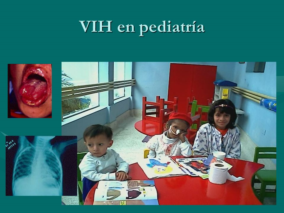 VIH en pediatría