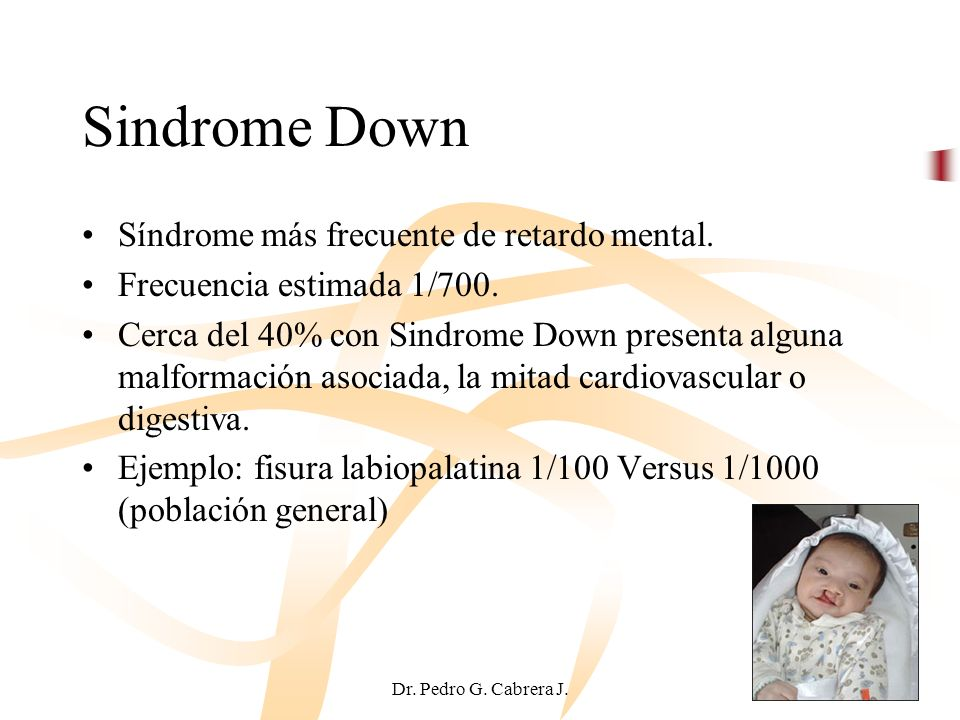 Sindrome Down Síndrome más frecuente de retardo mental.