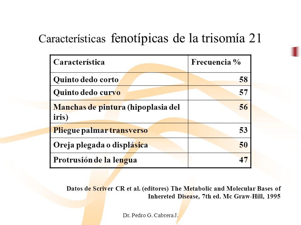 Características fenotípicas de la trisomía 21