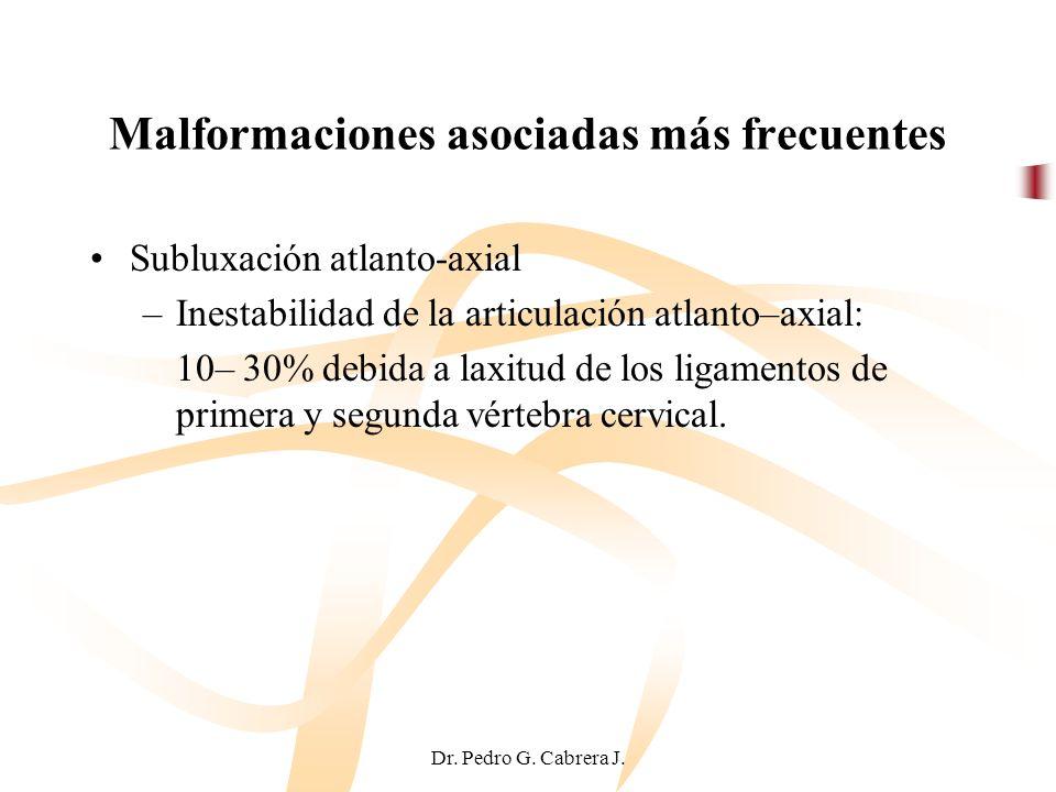 Malformaciones asociadas más frecuentes